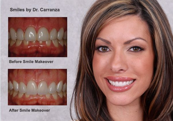 Dr. Carranza Smile Design