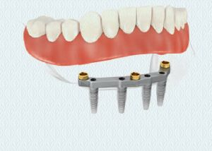 Dental Implants Replacement of All Missing Teeth 2