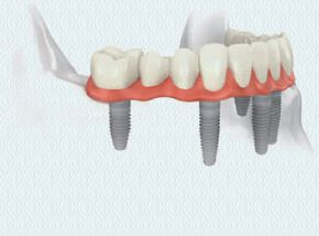 Dental Implants Replacement of All Missing Teeth 3
